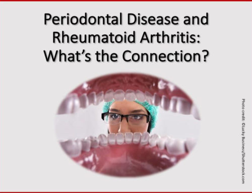 Dr. Asadi of Terravita Smiles Answers Your Questions